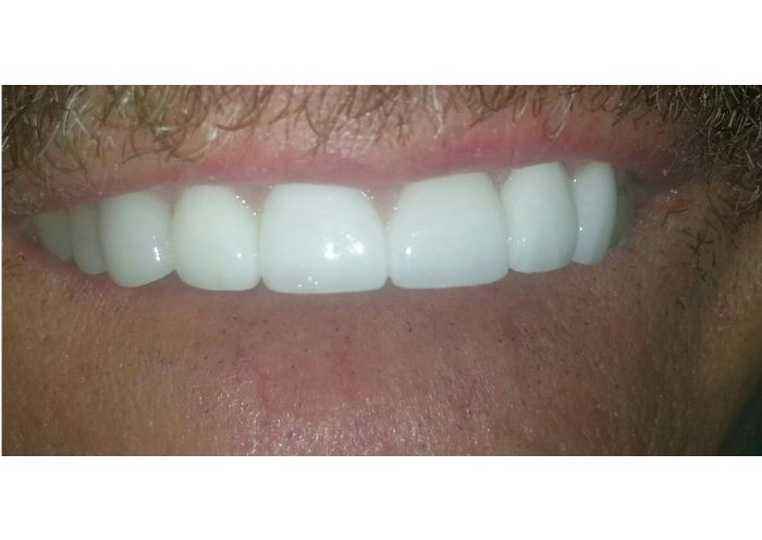 All Ceramic Crowns From Dr Muyal Amp Associates Dental Care