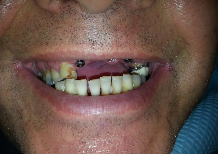 Implant Supported Bridge Photo Before