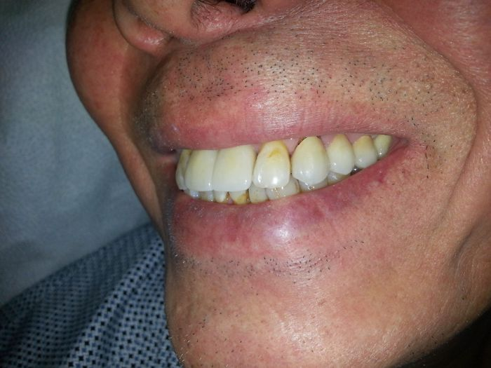 upper front implants