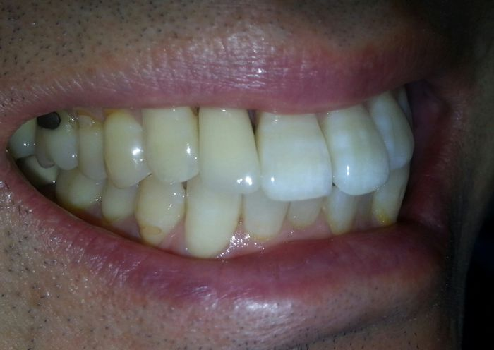 Single Tooth Implant After Photo - Case 1
