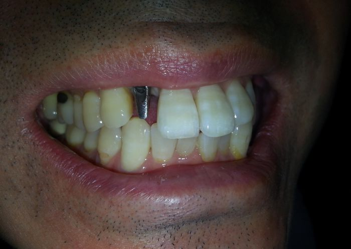 Single Tooth Implant Photo Before - Case 1