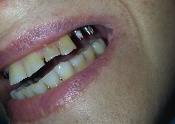 Single Tooth Implant Before Photo - Case 2